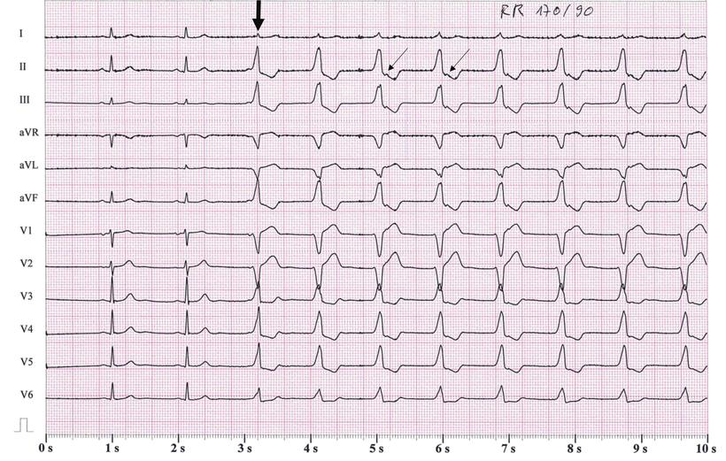 EKG Akzelerierter Rechtsventrikulärer Rhythmus