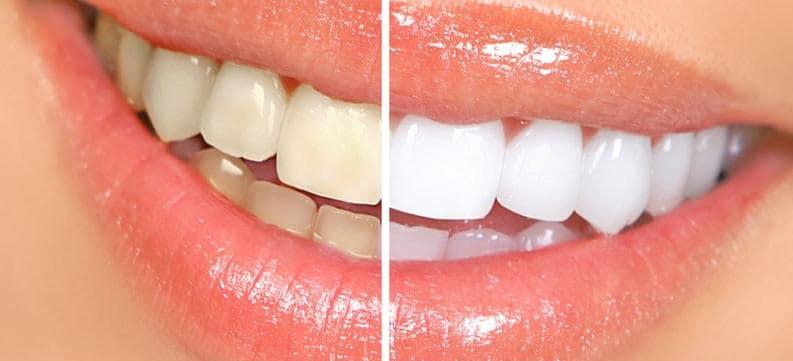 Resultado blanqueamiento dental Zoom