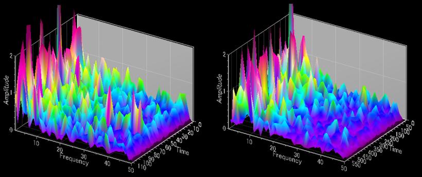 エメラルド整形外科疼痛クリニックが行っているエメラルド両極瞑想法ではシータ波・アルファ波・SMR波・ベータ波などを脳波を3D表示し、解析します