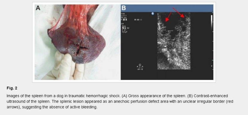Contrast Enhanced Ultrasound For Detection Of Traumatic Splenic