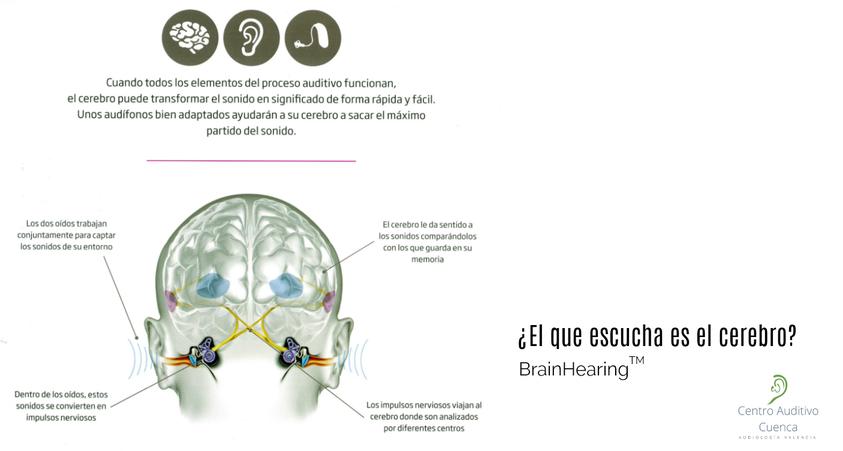 El que escucha es el cerebro.