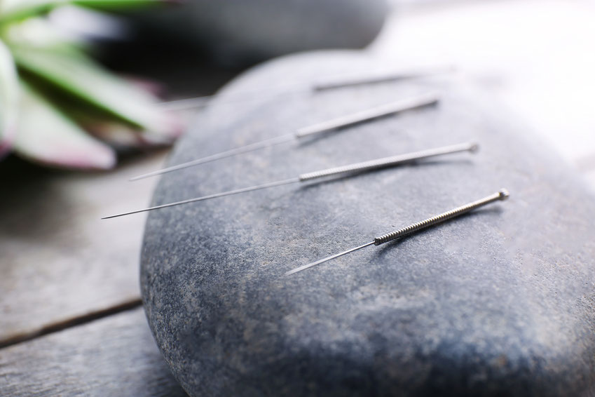 Acupuncture for Fertility Support