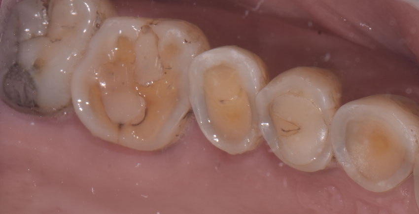 usura e erosione dei denti con sensibilità e dolore