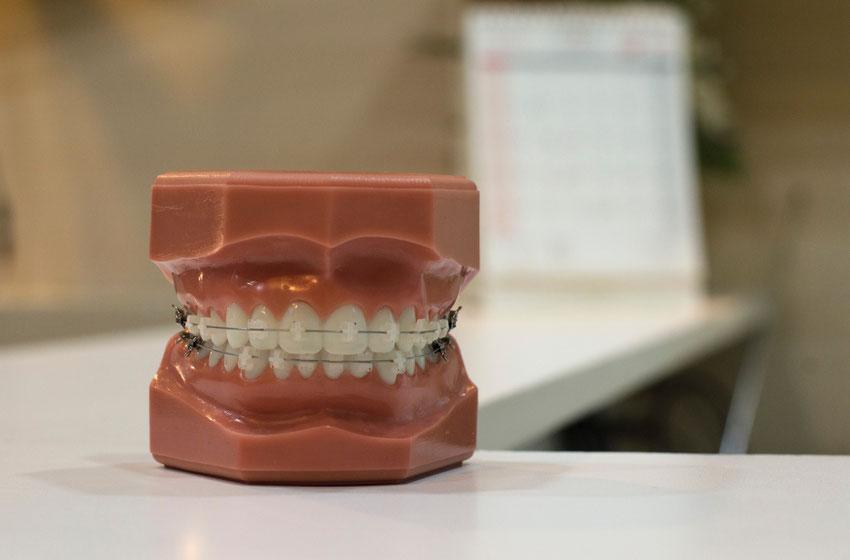 apparecchio ortodontico fisso per allineare i denti storti e accavallati