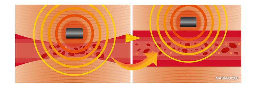 MAGMAX200|200mT強力磁気が血行不良に直接働きかける