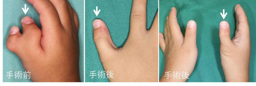 母指多指症 レベルⅣ 手術前と手術後