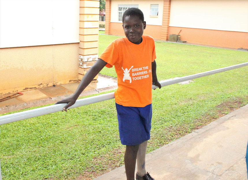 Jimmy is happy with his new prosthesis, allowing him to finally play with his friends again (picture courtesy of CoRSU)
