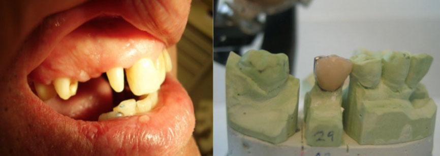 Zahnstumpf und Krone Modell konventionell