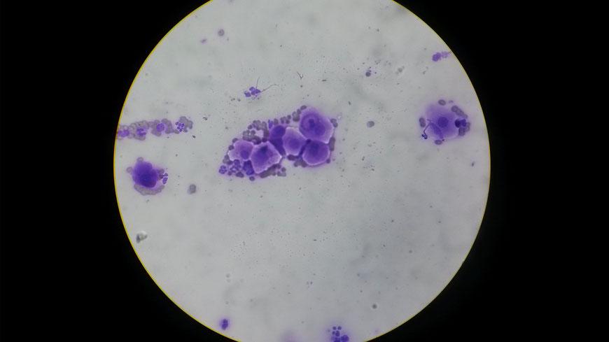 Zytologie: Zellen mit typischen Tumorzeichen (Malignitätskriterien)