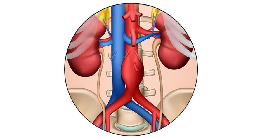 Ambulantes Gefäß-und Laserzentrum - Aortenaneurysma