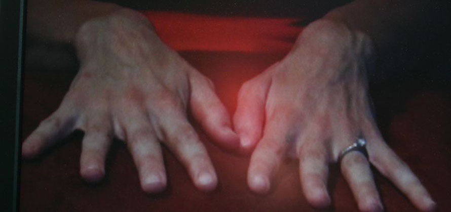 Client eliminated the warts via self-hypnosis; imagining each wart as a worry she was finally able to release.