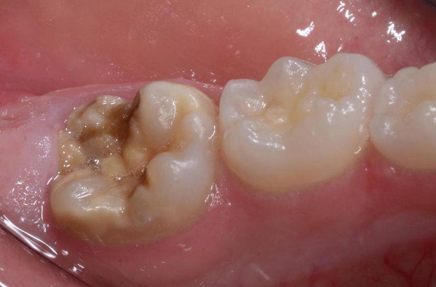 perdita smalto molare ipomineralizzato