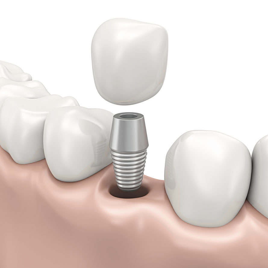 Zahnarzt Teufen