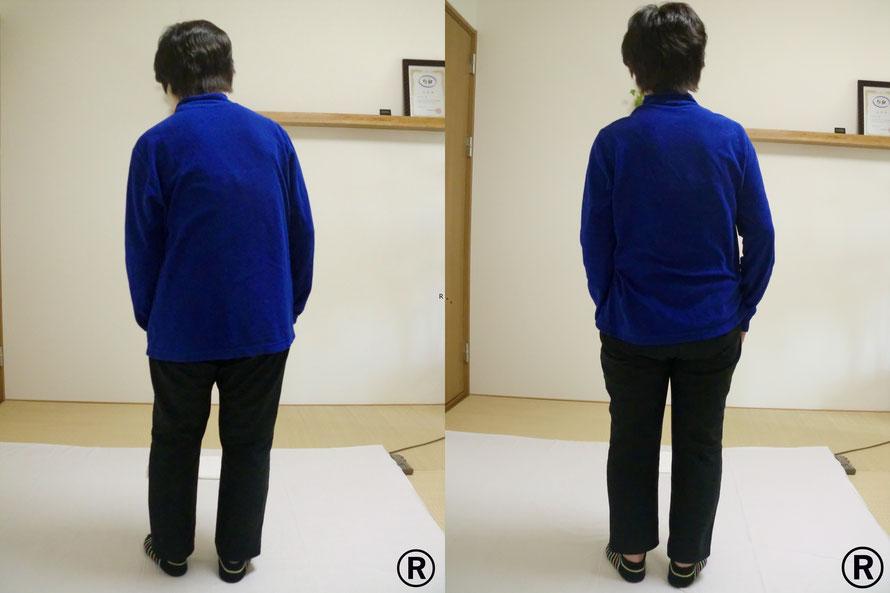 福井市から来られた方の施術前後で体のゆがみが改善しています。しんそう福井武生では体の変化を写真でお見せします。