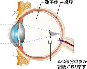 飛蚊症は、眼の中央の硝子体が加齢などで、変性、出血、炎症などが原因で起こります。