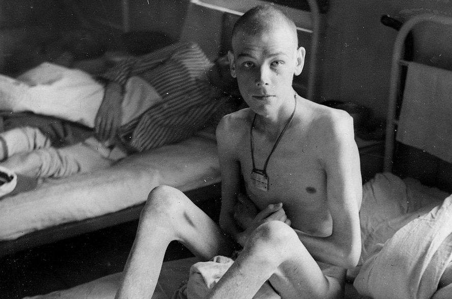 One of the Russian prisoners of war from Storfjord photographed in the hospital in Øverbygd. Photo taken by Swedish police photographer Bjørn Winsnes which assisted the British War Crimes Commission (http://www.nordlys.no/nyheter/article6014819.ece)