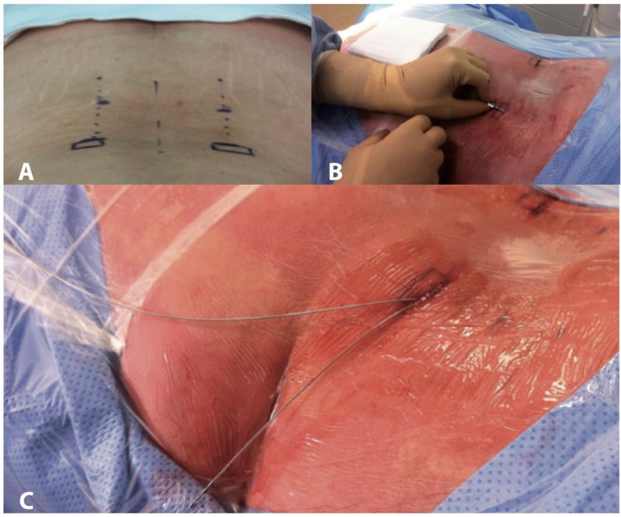 Fig. 4 – (a) Marques cutanées montrant la projection des électrodes [pointillés] et des incisions [rectangles]. (b) Positionnement de l'aiguille de Tuohy. (c) Extrémités des électrodes externalisées en vue du raccordement à un stimulateur externe