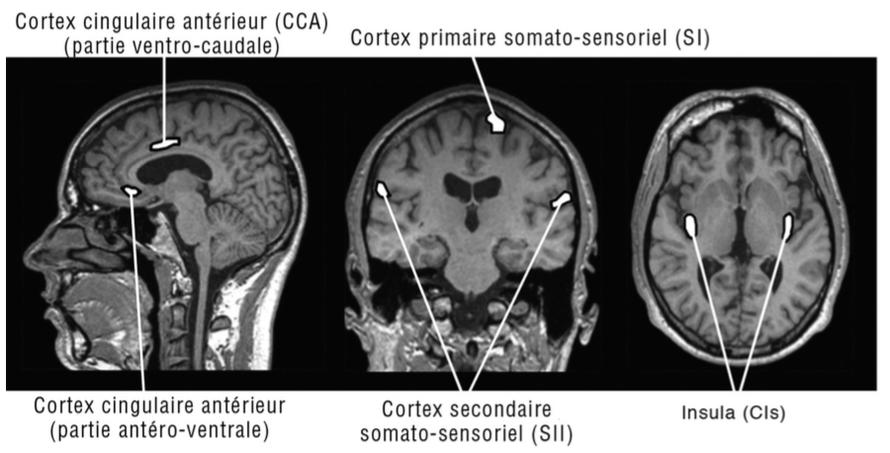 Régions du cortex impliqué dans la douleur. Sur ces coupes cérébrales d'imagerie par résonance magnétique (IRM), nous retrouvons des représentations schématiques des quatre principales structures corticales impliquées dans la douleur.