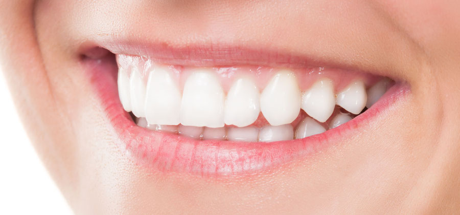 Besonders lange haltbarer Effekt: Power-Bleaching in unserer Zahnarztpraxis