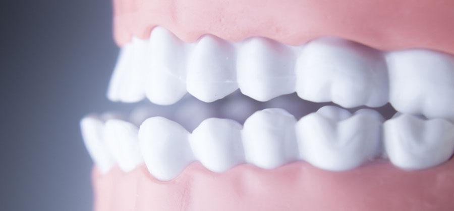 Eine Zahnfehlstellung kann schwerwiegende gesundheitliche Probleme verursachen