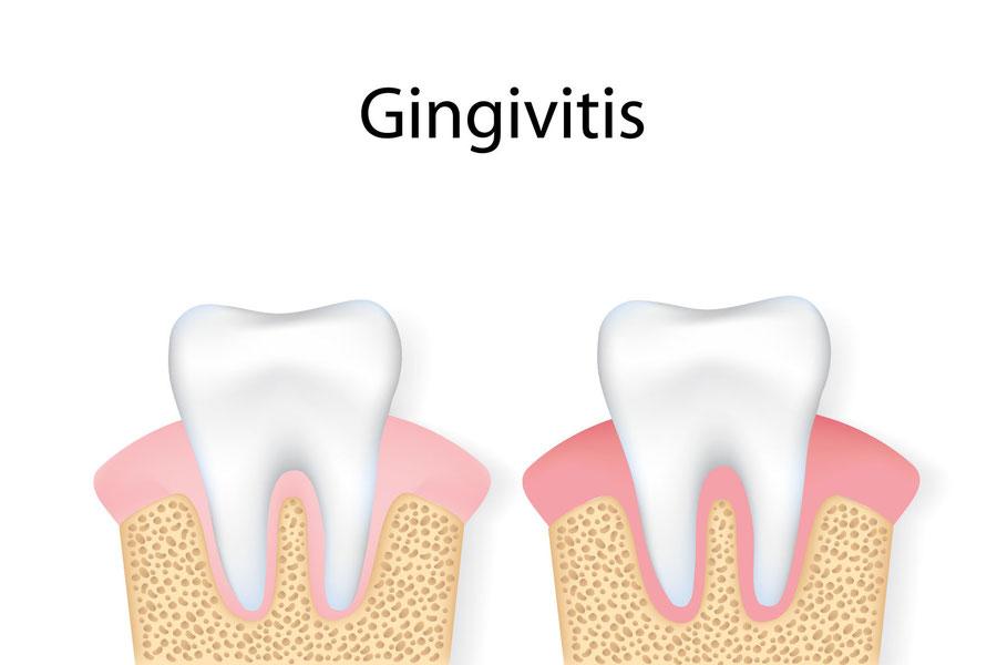 Zahnfleischentzündung: mögliche Ursache für Zahnfleischrückgang, Zahnausfall und Mundgeruch