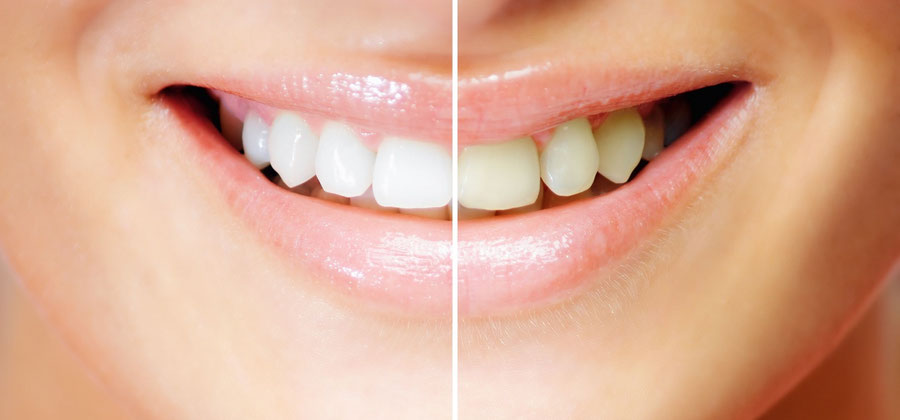 Bleaching – the effective way to whiten teeth