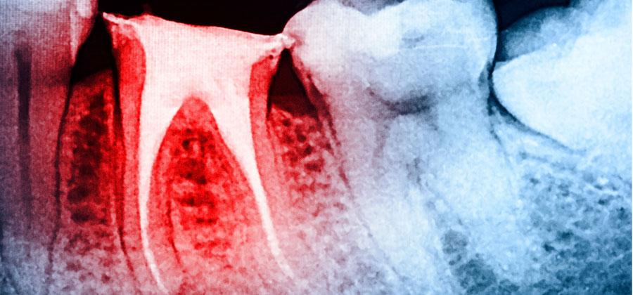Die Wurzelkanalbehandlung erhält den natürlichen Zahn