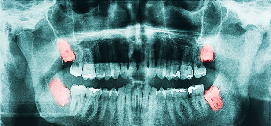 We perform wisdom tooth extraction gently, with little pain.