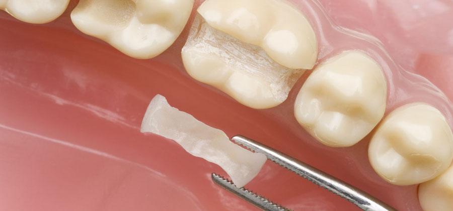 Dank CEREC erhalten Patienten ihre Zahnfüllung in nur einer Behandlung