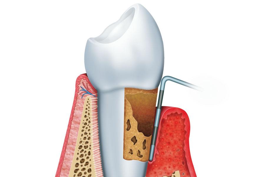 Bei Zahnfleisch-Rückgang hilft unser Konzept: Wir beraten Sie zu Fragen der richtigen Mundhygiene, zu Ernährung und richtiger Zahnputztechnik