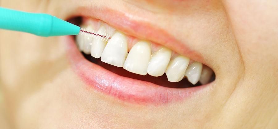 Zahnzwischenräume wirksam reinigen