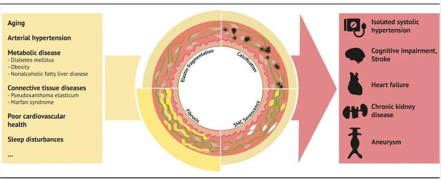 Arterial Stiffness as a Predictor of Cardiovascular Events