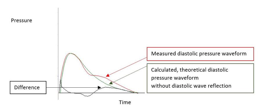 Diastolic Reflection Area
