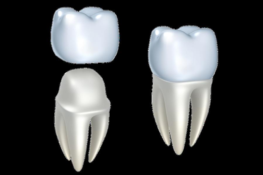 Die Zahnkrone kann auf dem natürlichen Zahn oder auf einem Implantat befestigt werden