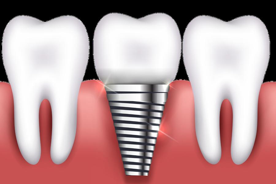 Ein Zahnimplantat ist nicht von einem natürlichen Zahn zu unterscheiden