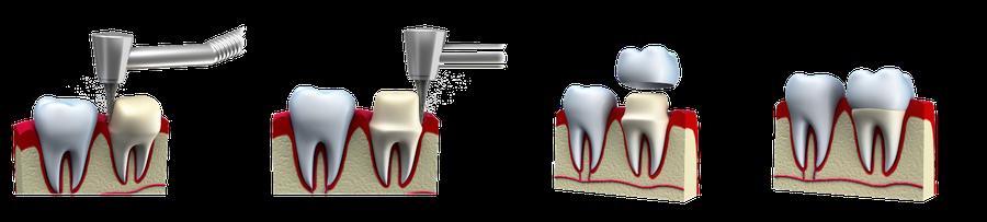 Zahnkrone Verlauf der Behandlung