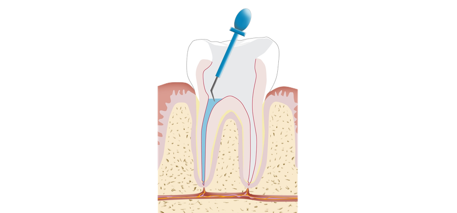 Mit einer Wurzelbehandlung kann der eigene Zahn gerettet werden.