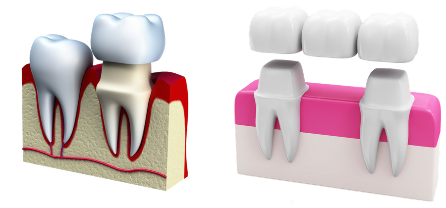 Proven tooth replacement: dental crown and dental bridge