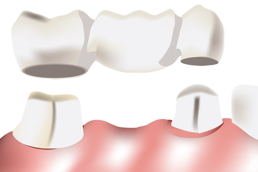 Die Zahnbrücke – festsitzender Zahnersatz für ein natürliches Kaugefühl