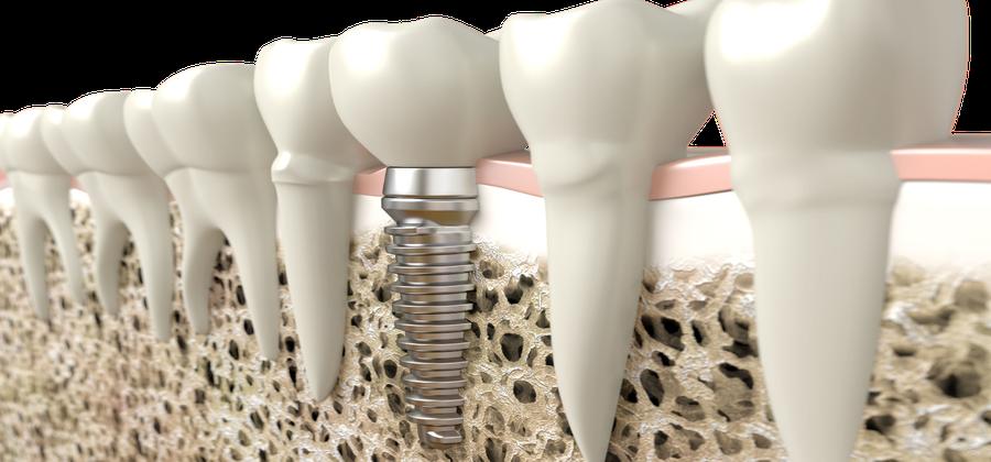 Das Zahnimplantat – die beste Form von Zahnersatz