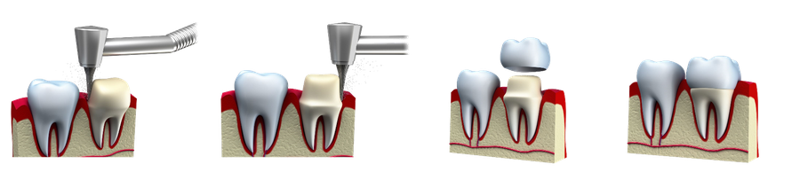 Dental crown progression of treatment