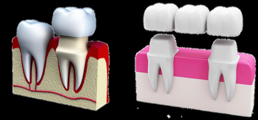 Bewährter Zahnersatz: Zahnkrone und Zahnbrücke