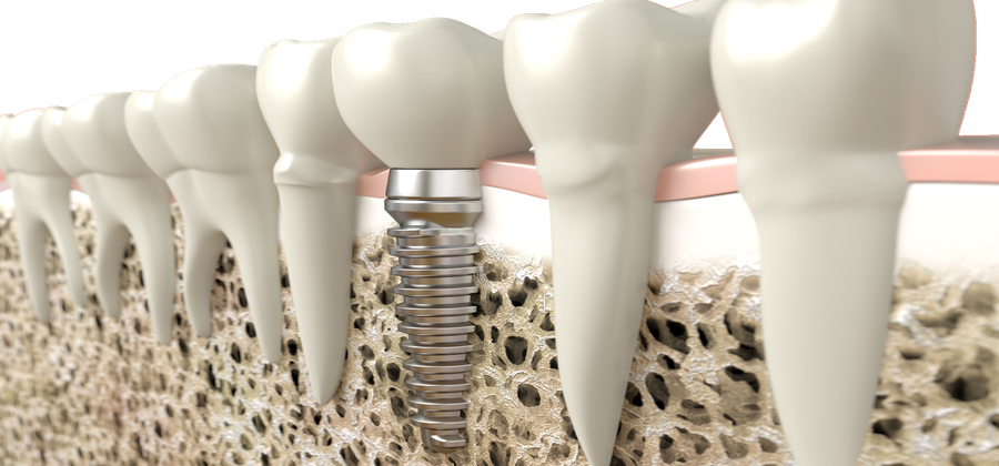 The dental implant – the best form of tooth replacement
