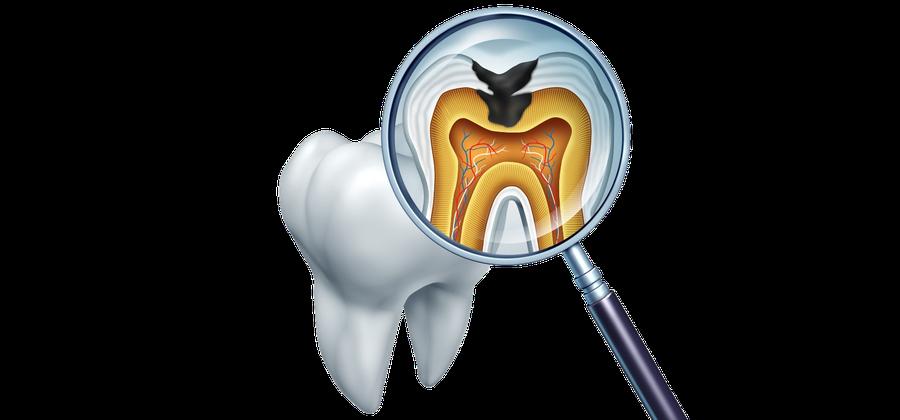 Karies sieht so aus. Karies muss schnell behandelt werden, um eine Zerstörung des Zahns zu verhindern