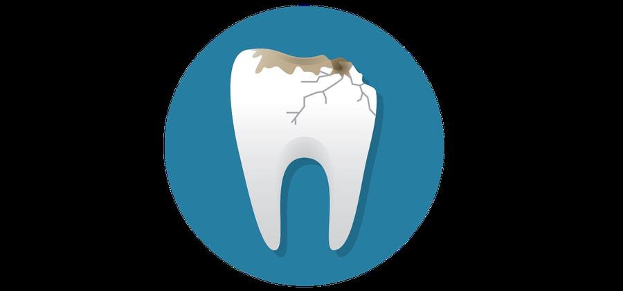 Bei einem Zahnunfall gilt: Ruhe bewahren, Zahn feucht einpacken und schnellstens in die Zahnarztpraxis kommen