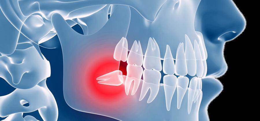 Weisheitszähne machen häufig Probleme – in unserer Zahnarztpraxis entfernen wir Ihren Weisheitszahn schonend und schmerzfrei
