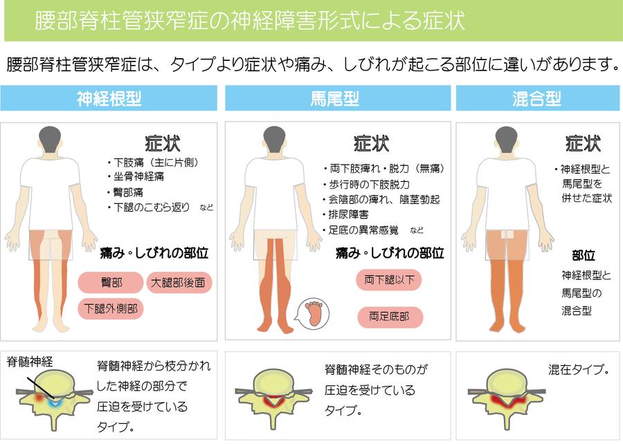 腰部脊柱管狭窄症の症状分類画像