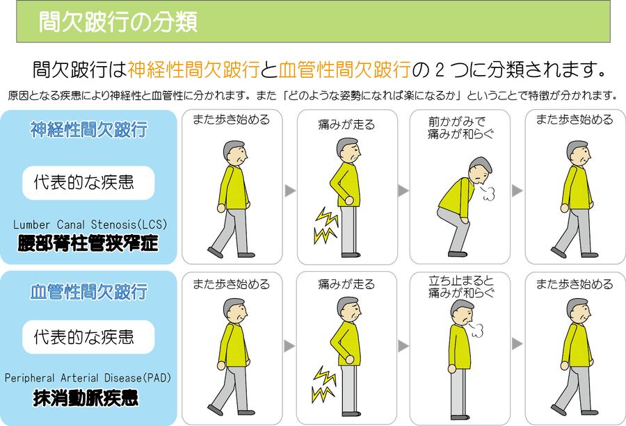 腰部脊柱管狭窄症の画像
