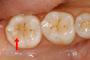 奥歯のむし歯 治療後(プラスチックで治療)