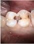 歯の左右にある大きめのむし歯
